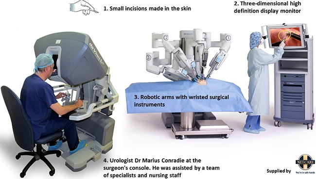 Da Vinci robotic-assisted technology, which was used at the Netcare Waterfall City Hospital to perform a partial nephrectomy for the first time in SA.